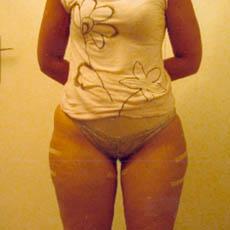 Avant adipotomie