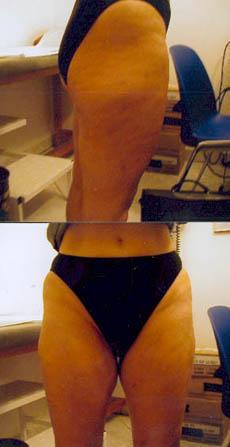 Après adipotomie